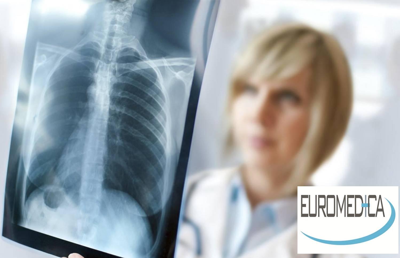 8€ από 25€ για μία Ακτινογραφία (1 Λήψη F) σε οποιοδήποτε σημείο του σώματος, με την εγγύηση της EUROMEDICA