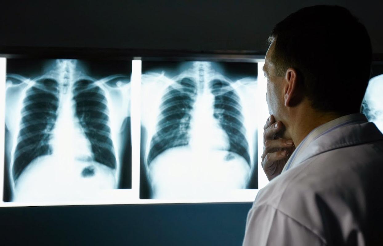 8€ από 25€ για μία Ακτινογραφία (1 Λήψη F) σε οποιοδήποτε σημείο του σώματος, σε Πράξις Υγείας & Χρήστος Χρήστου Med