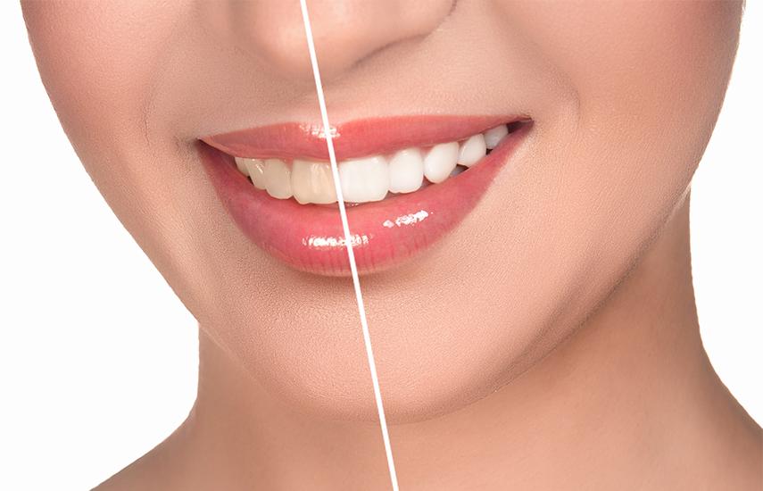 75€ από 139€ για Ολοκληρωμένη Θεραπεία Λεύκανσης Δοντιών, διάρκειας 60', για δόντια έως 5 τόνους πιο λευκά, σε 8 Κορυφαία Οδοντιατρικά Κέντρα σε όλη την Αττική