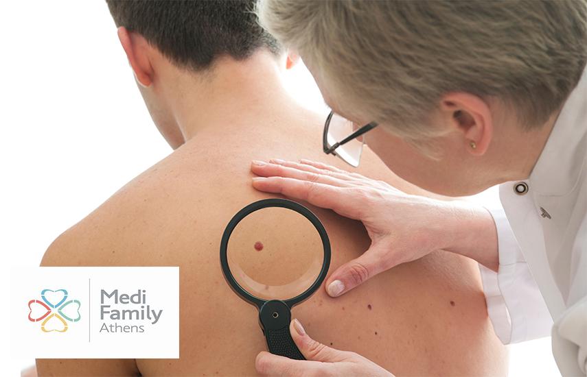 Από 30€ για Αξιολόγηση, Διάγνωση και Αφαίρεση Σπίλου (Ελιάς) με laser ή Χειρουργική επέμβαση, στο ''Medi Family Athens'' στο Μουσείο