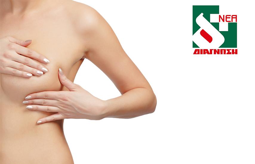 35€ από 75€ για Τριπλό Μαστολογικό Έλεγχο (Ψηφιακή Μαστογραφία, Υπέρηχογράφημα Μαστών, Συμπέρασμα Εξετάσεων) στα Ιατρικά Κέντρα της ''Νέας Διάγνωσης'' εικόνα
