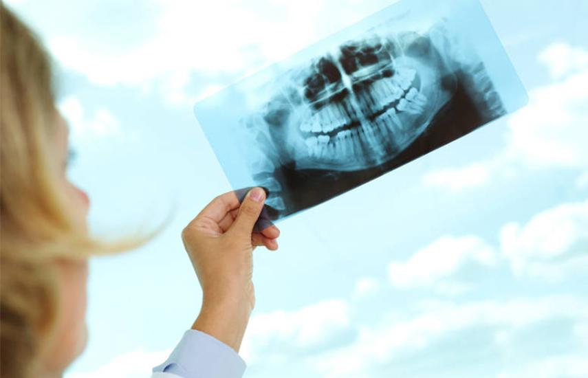 16€ από 50€ για Πανοραμική Ακτινογραφία Δοντιών, ιδανική για Πρόληψη & Διάγνωση Προβλημάτων σε Γνάθους & Στοματική Κοιλότητα, στo ''Χρήστος Χρήστου MED'' στο Μαρούσι