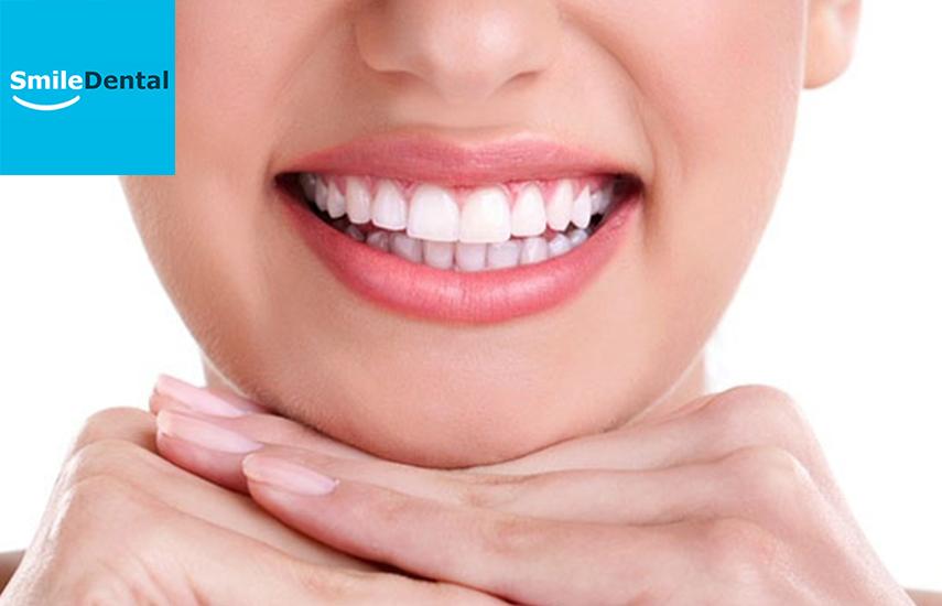 Από 30€ για Σφράγισμα ή Λεύκανση δοντιών με μασελάκια, στο Οδοντιατρικό Κέντρο ''Smile Dental'' στο Παγκράτι