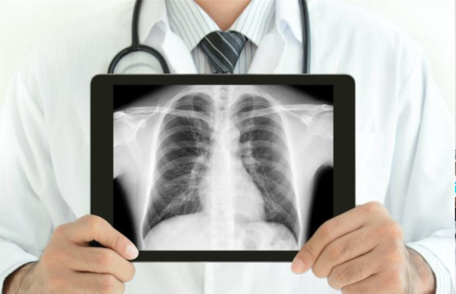 Από 75€ για 2-4 Ψηφιακές Ακτινογραφίες στο χώρο σας, από το ιατρικό διαγνωστικό κέντρο